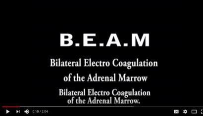 BEAM Explanation